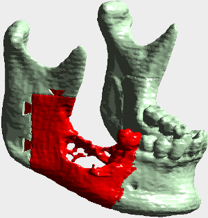 lower jaw with cancer