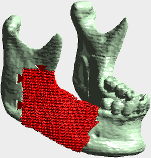 lower jaw with custom implant